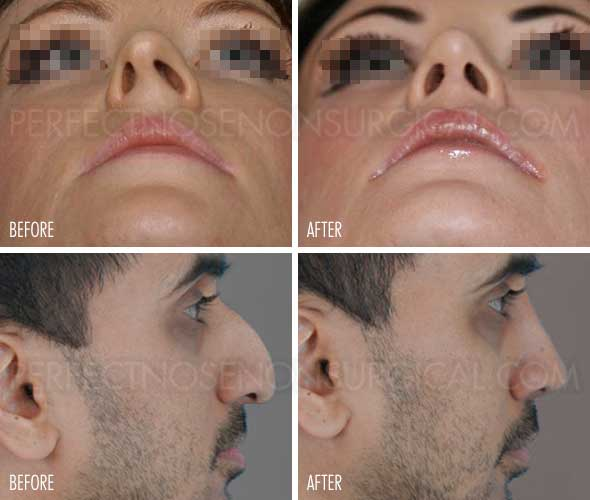 Deviated Septum Surgery Alternative Nose Straightener