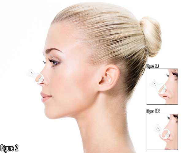 How To Make Nose Pointier Using Non Surgical Nose Job Atlernative