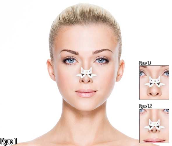 How To Make Nose Smaller with Non Surgical Nose Job Alternative