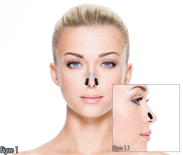 Lift Nose Up Lift Hanging Nasal Tip Columella Make Long Nose Shorter