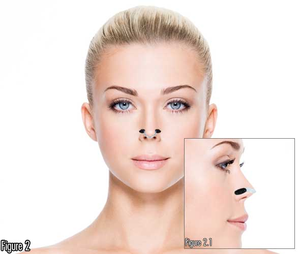 Make Nose Shorter Remove Dorsal Hump Long Nose Shorter Nose Straightener