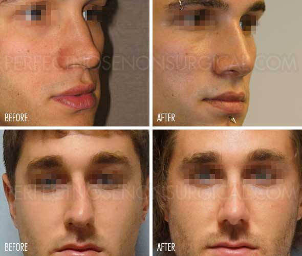 Nose Straightener Before and After Perfect Nose Non Surgical