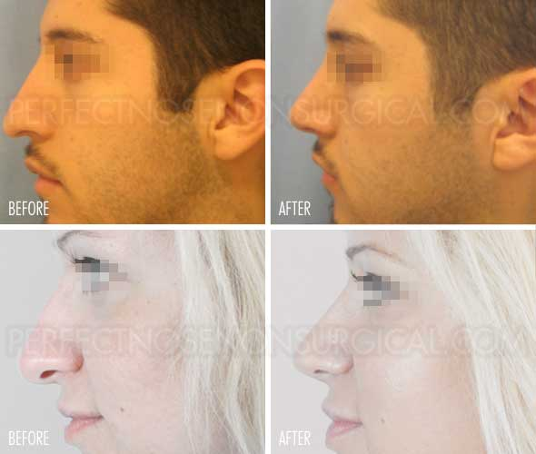 Nose Up Before and After Perfect Nose Non Surgical