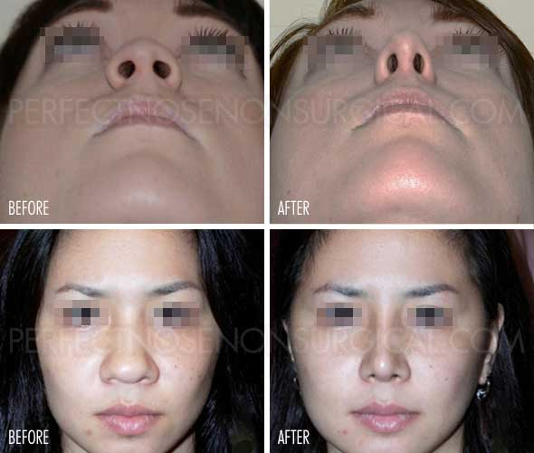 Nose Up Non Surgical Nose Lift Instant Results