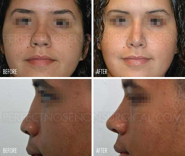 Rhinoplasty Before and After Gallery Perfect Nose Non Surgical Rhinoplasty Alternative