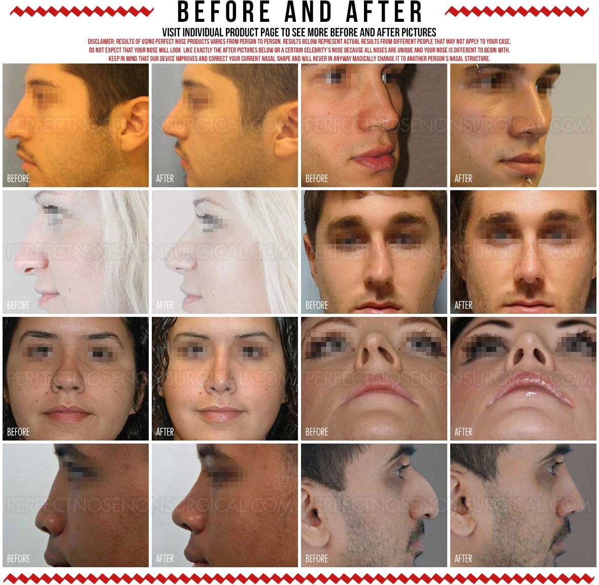 Perfect Nose Before and After Non Surgical Nose Job Rhinoplasty Alternative