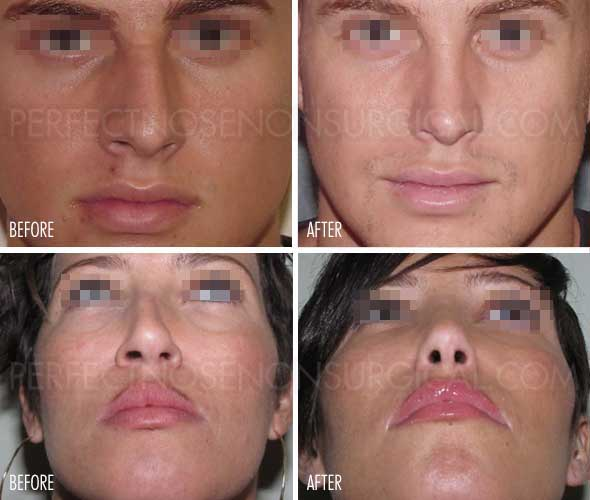 Deviated Septum Surgery Alternative Before and After Perfect Nose Straightener