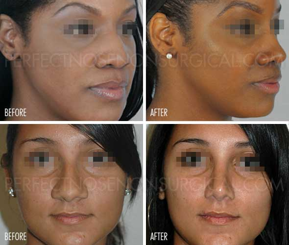 Make Nose Slimmer Make Nose Smaller